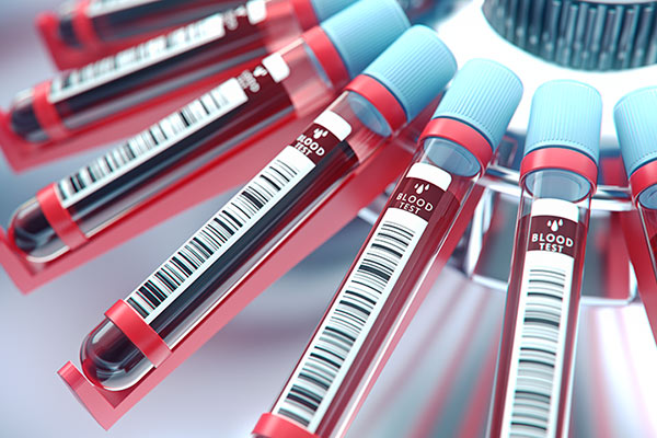 Close up image of blood vials for testing